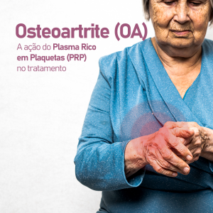 a-acao-do-plasma-rico-em-plaquetas-(prp)-no-tratamento-da-osteoartrite-(oa)